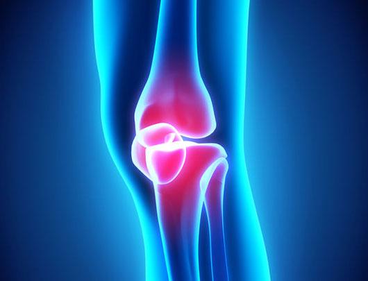 A digital image of Rheumatoid Arthritis.